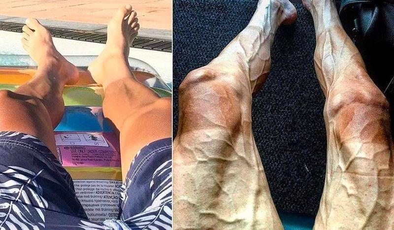 ¿Por qué las piernas de los ciclistas profesionales tienen 'raíces'?