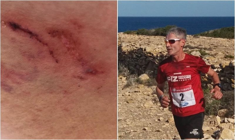 Martín Fiz denunciará al dueño de un perro que le mordió la nalga en Formentera