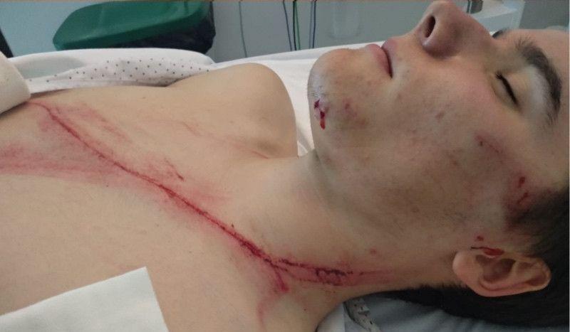 Se rozó la tragedia en el Campeonato de Euskadi de Ciclismo sub23 por un quitamiedos